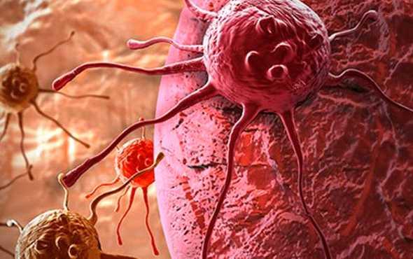 kanser nedir
